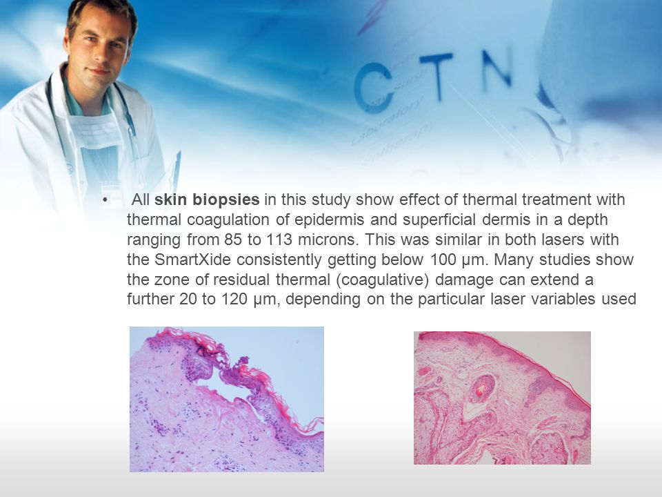 All skin biopsies in this study show effect of thermal treatment with thermal coagulation of epidermis and superficial dermis in a depth ranging from 85 to 113 microns.