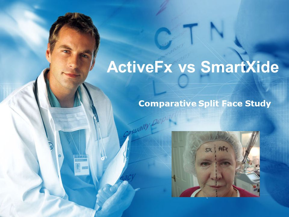 ActiveFx vs SmartXide Comparative Split Face Study