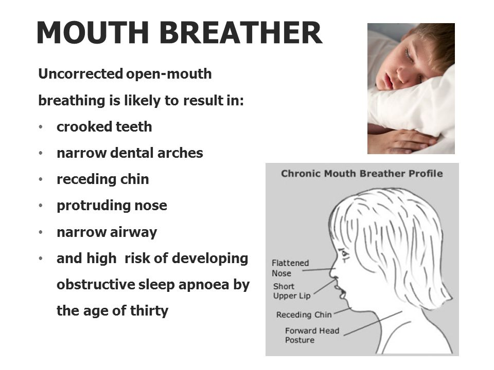 MOUTH BREATHER Uncorrected open-mouth breathing is likely to result in: crooked teeth narrow dental arches receding chin protruding nose narrow airway and high risk of developing obstructive sleep apnoea by the age of thirty