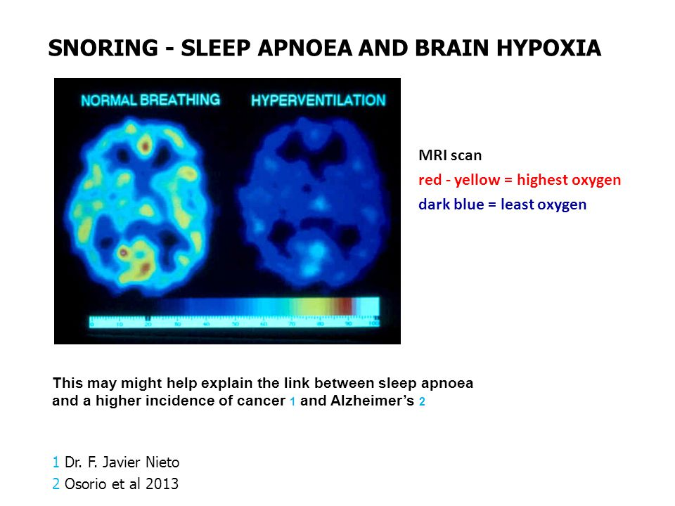 MRI scan red - yellow = highest oxygen dark blue = least oxygen This may might help explain the link between sleep apnoea and a higher incidence of ca