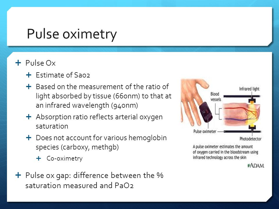 Pulse oximetry  Pulse Ox  Estimate of Sao2  Based on the measurement of the ratio of light absorbed by tissue (660nm) to that at an infrared wavele