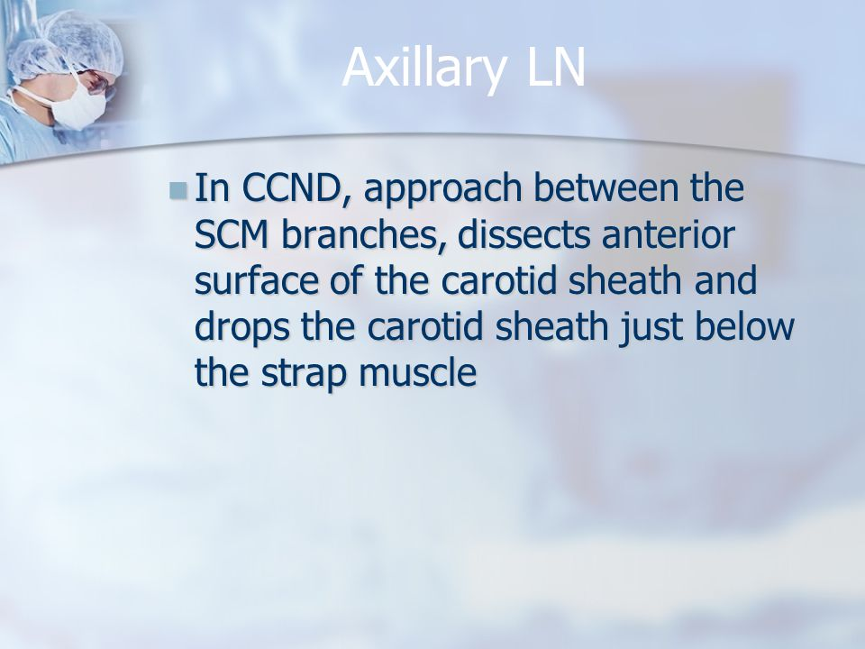 Axillary LN In CCND, approach between the SCM branches, dissects anterior surface of the carotid sheath and drops the carotid sheath just below the st