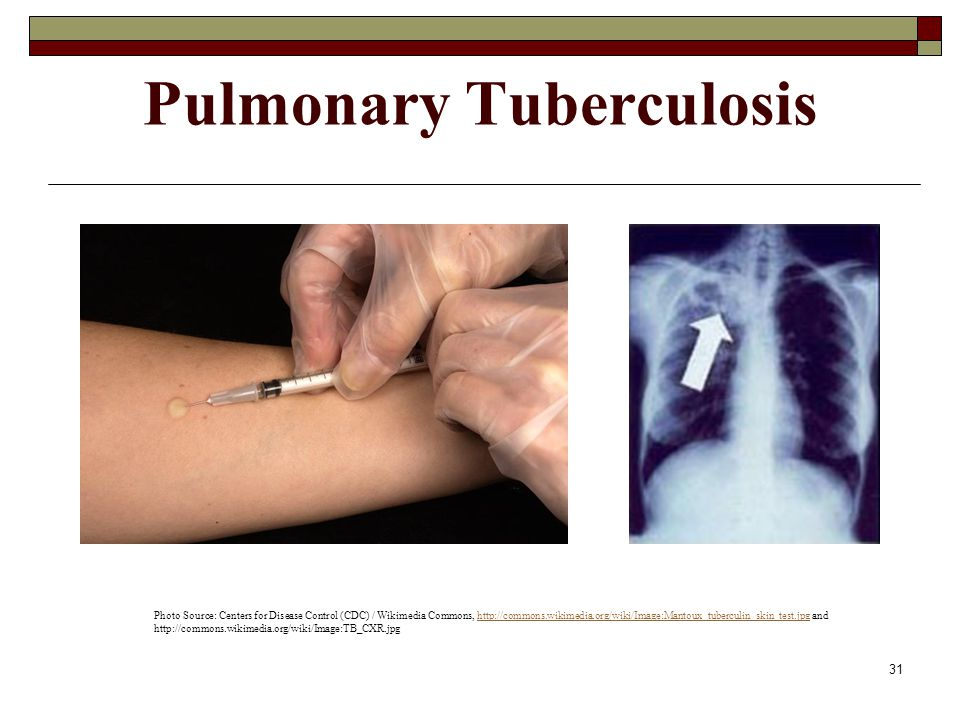 31 Pulmonary Tuberculosis Photo Source: Centers for Disease Control (CDC) / Wikimedia Commons, http://commons.wikimedia.org/wiki/Image:Mantoux_tubercu