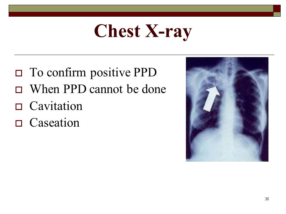 36 Chest X-ray  To confirm positive PPD  When PPD cannot be done  Cavitation  Caseation