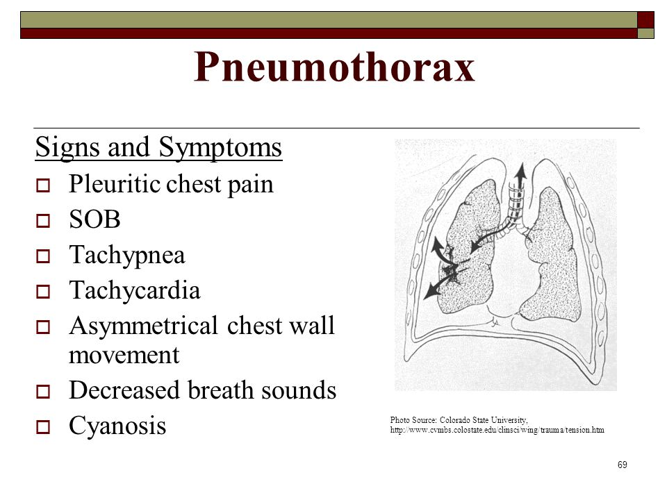 69 Pneumothorax Signs and Symptoms  Pleuritic chest pain  SOB  Tachypnea  Tachycardia  Asymmetrical chest wall movement  Decreased breath sounds