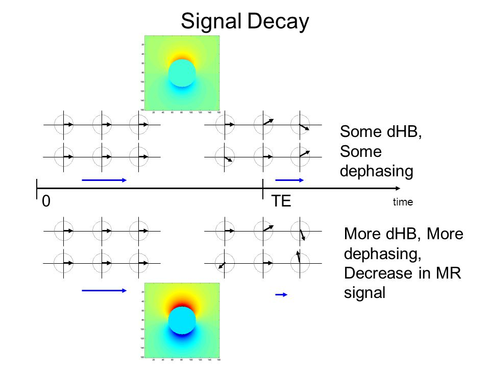 Signal Decay time 0TE Some dHB, Some dephasing More dHB, More dephasing, Decrease in MR signal