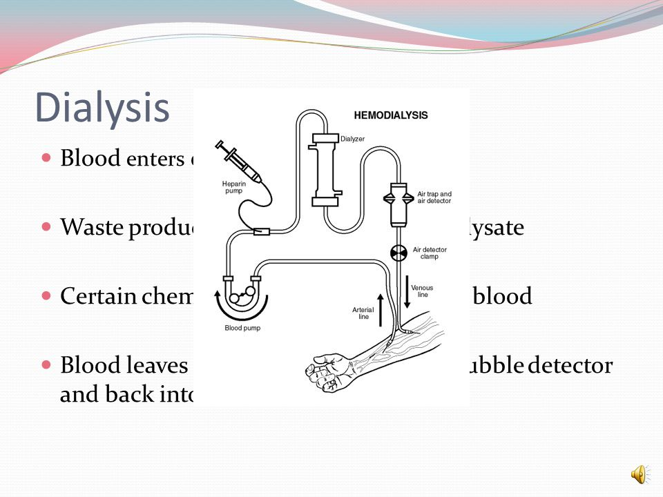 Dialysis Blood enters dialyzer with dialysate Waste products move from blood to dialysate Certain chemicals from dialysate enrich blood Blood leaves dialyzer goes through air bubble detector and back into bloodstream