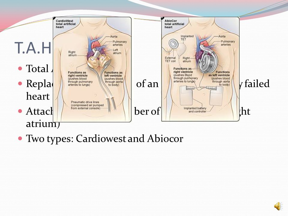V.A.D Artificial Heart Ventricle assist device Used to help partially working ventricles of heart Example: Novacor LVAS How it works: Pump connected to left ventricle.