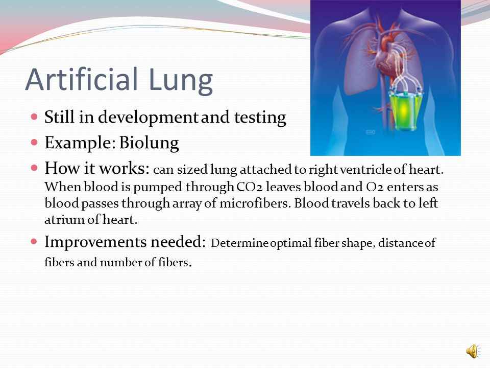 Artificial Lung Still in development and testing Example: Biolung How it works: can sized lung attached to right ventricle of heart.
