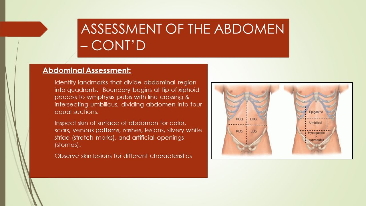 ABDOMINAL ASSESSMENT – CONT'D  If you note bruising, ask if patient self-administers injections, such as insulin, for ex.