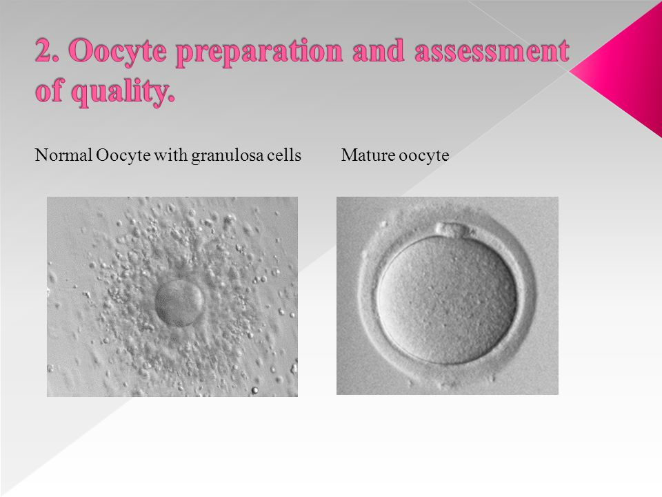ICSI requires only one single viable spermatozoon, preferably of good morphology that is selected by the embryologist and injected in each oocyte available.