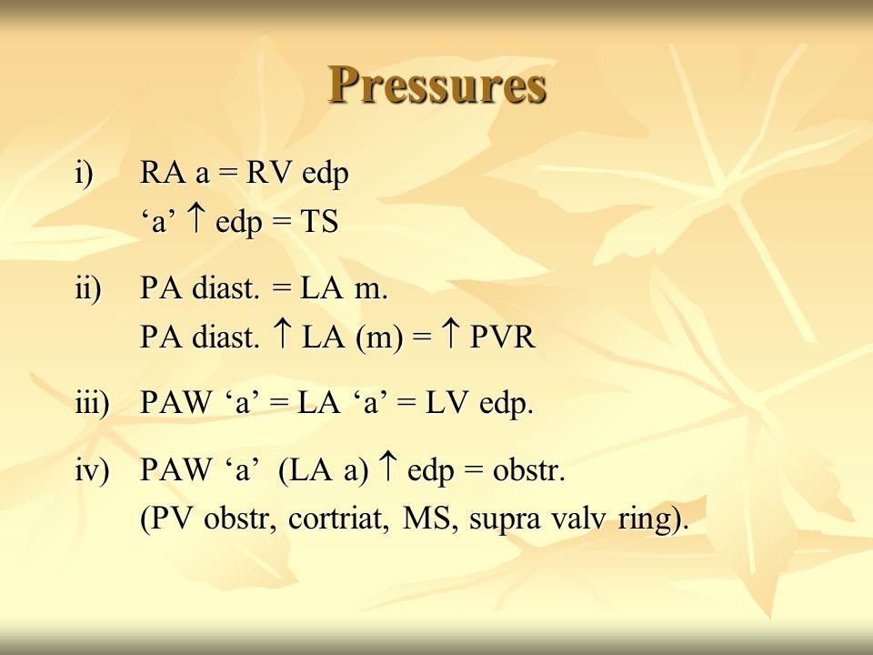 Pressures i)RA a = RV edp 'a'  edp = TS ii)PA diast.