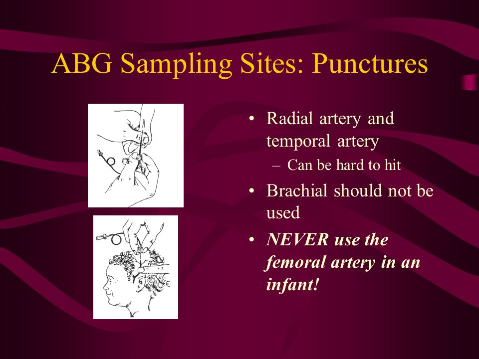 ABG Sampling Sites Umbilical artery catheter (UAC) –Clots may form on the end –Remember, it is post- ductal blood so the PaO2 may be lower than pre-du