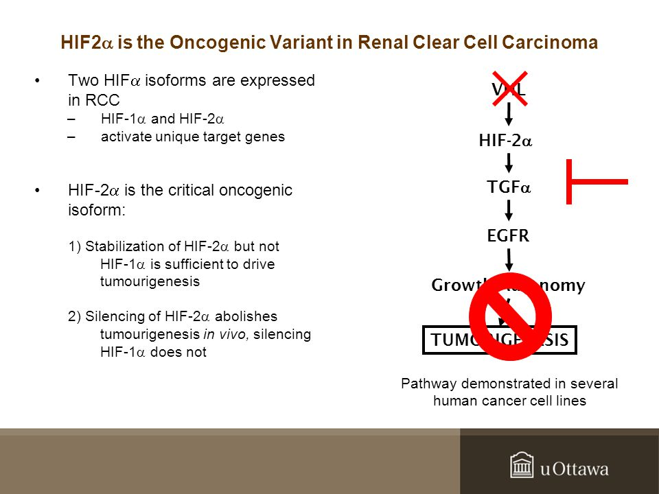 Two HIF  isoforms are expressed in RCC –HIF-1  and HIF-2  –activate unique target genes HIF-2  is the critical oncogenic isoform: 1) Stabilization of HIF-2  but not HIF-1  is sufficient to drive tumourigenesis 2) Silencing of HIF-2  abolishes tumourigenesis in vivo, silencing HIF-1  does not HIF2  is the Oncogenic Variant in Renal Clear Cell Carcinoma VHL HIF-2  TGF  EGFR Growth Autonomy TUMORIGENESIS Pathway demonstrated in several human cancer cell lines