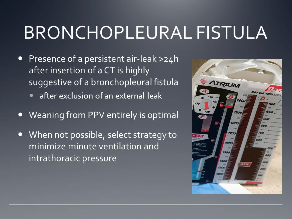 BRONCHOPLEURAL FISTULA Presence of a persistent air-leak >24h after insertion of a CT is highly suggestive of a bronchopleural fistula after exclusion of an external leak Weaning from PPV entirely is optimal When not possible, select strategy to minimize minute ventilation and intrathoracic pressure