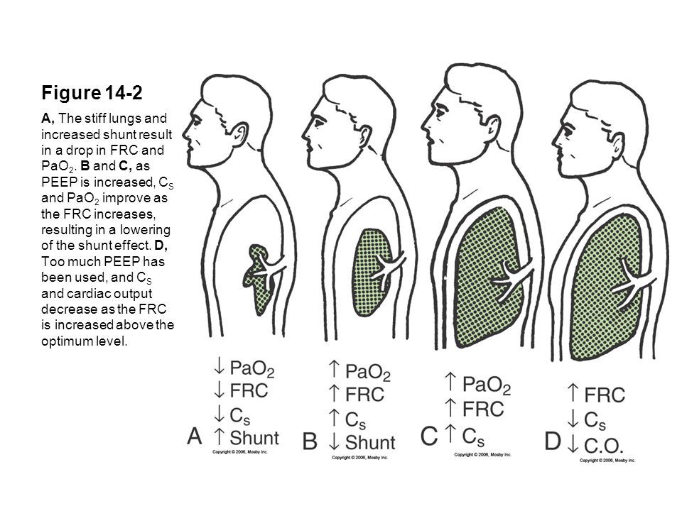 Figure 14-2 A, The stiff lungs and increased shunt result in a drop in FRC and PaO 2. B and C, as PEEP is increased, C S and PaO 2 improve as the FRC