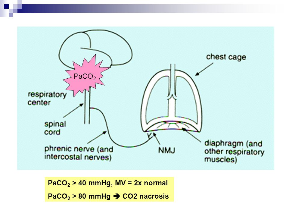 PaCO 2 PaCO 2 > 40 mmHg, MV = 2x normal PaCO 2 > 80 mmHg  CO2 nacrosis