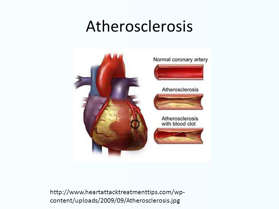 Atherosclerosis http://www.heartattacktreatmenttips.com/wp- content/uploads/2009/09/Atherosclerosis.jpg