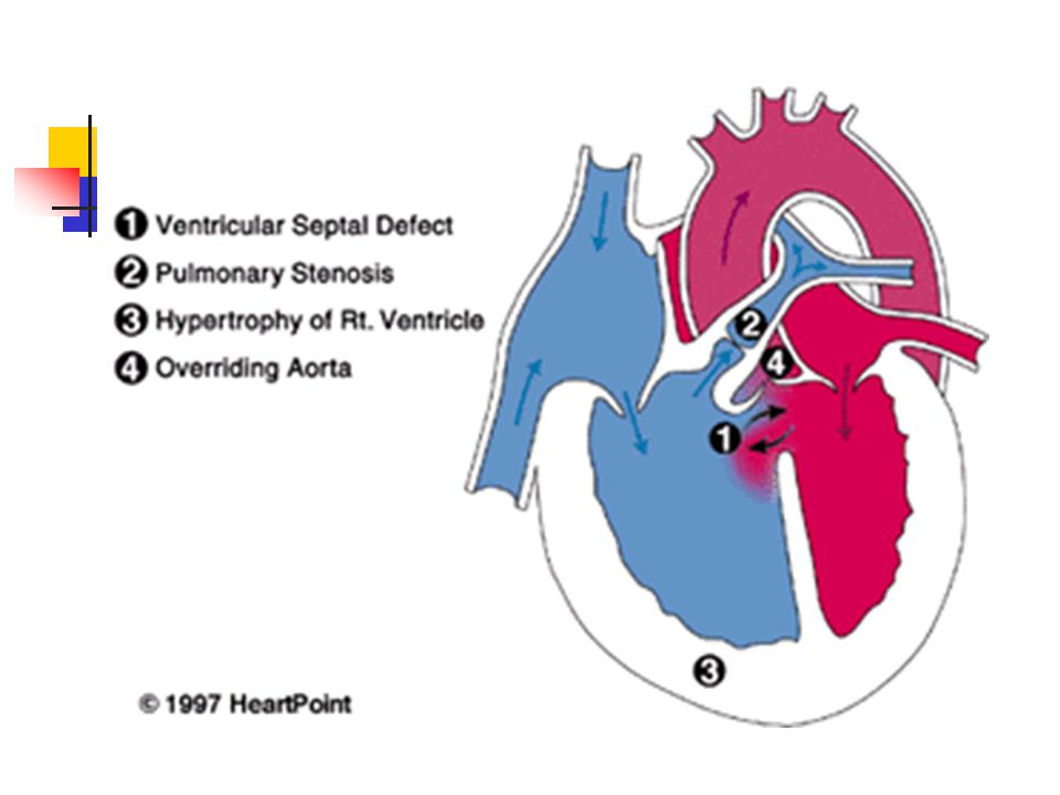 Impaired pulmonary function 1.Airway obstruction 2.