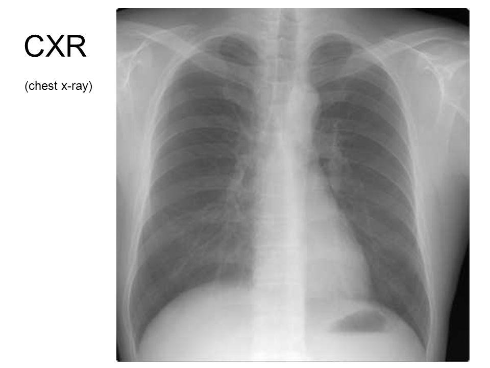 36 CXR (chest x-ray)