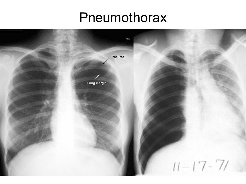 54 Pneumothorax