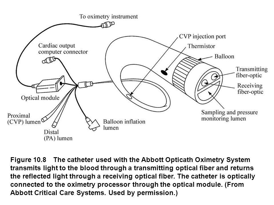 Figure 10.8 The catheter used with the Abbott Opticath Oximetry System transmits light to the blood through a transmitting optical fiber and returns the reflected light through a receiving optical fiber.