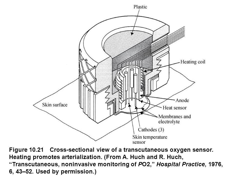 fig_10_21 Figure 10.21 Cross-sectional view of a transcutaneous oxygen sensor.