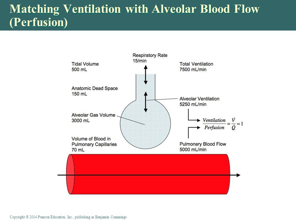 Matching Ventilation with Alveolar Blood Flow (Perfusion)