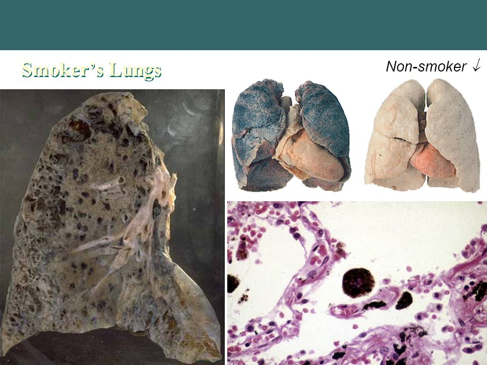 Copyright © 2004 Pearson Education, Inc., publishing as Benjamin Cummings Smoker's Lungs Non-smoker 