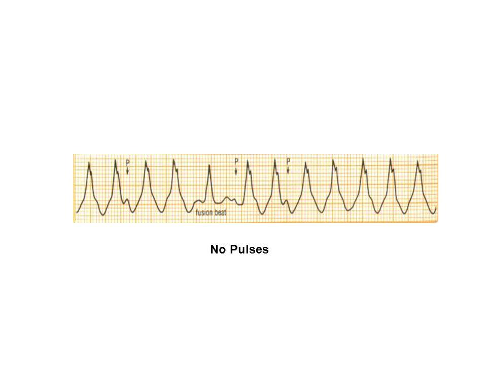 No Pulses