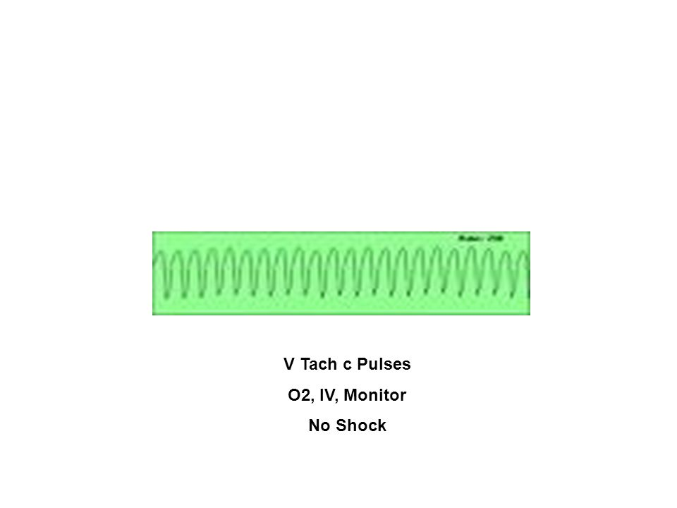V Tach c Pulses O2, IV, Monitor No Shock