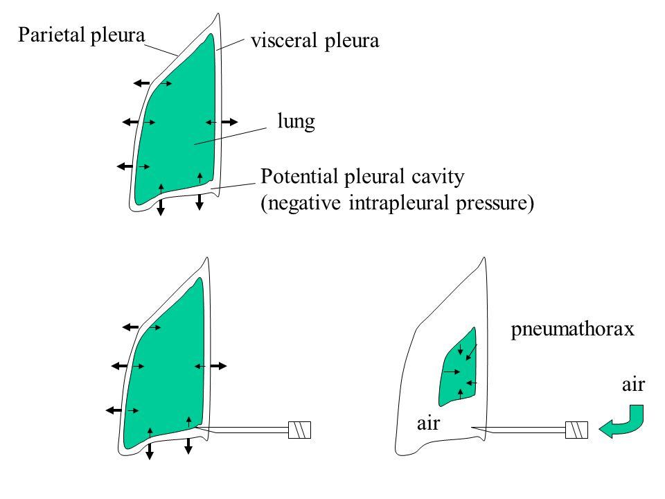 Parietal pleura visceral pleura Potential pleural cavity (negative intrapleural pressure) air pneumathorax lung