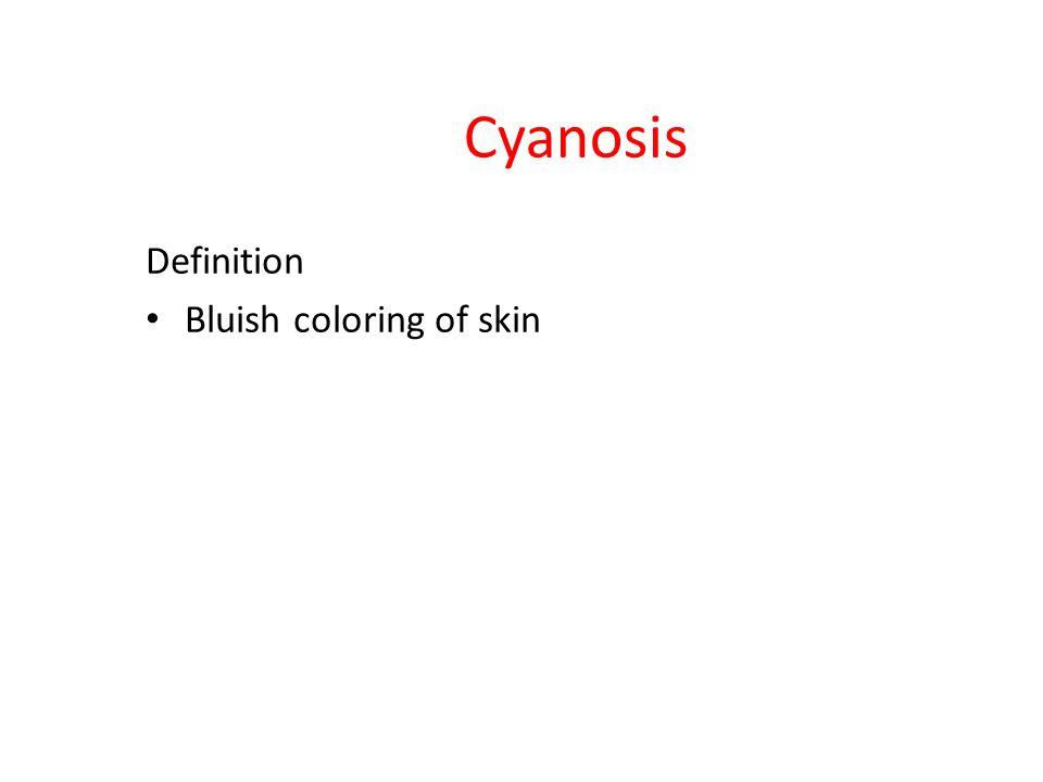 Cyanosis Definition Bluish coloring of skin
