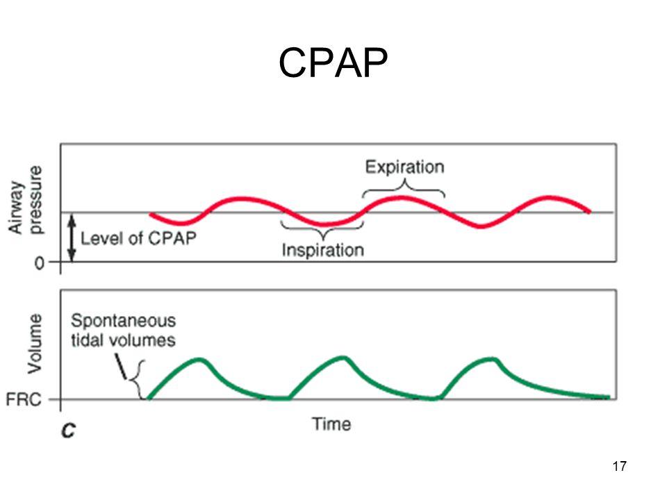 17 CPAP