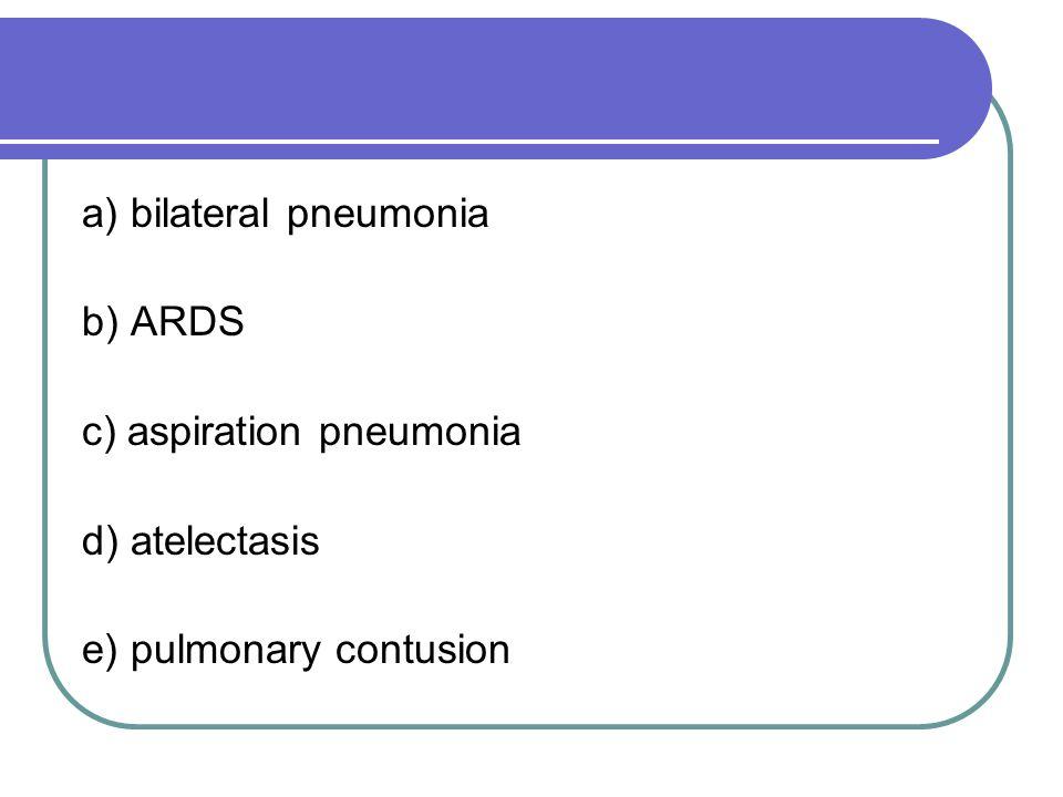 a) bilateral pneumonia b) ARDS c) aspiration pneumonia d) atelectasis e) pulmonary contusion