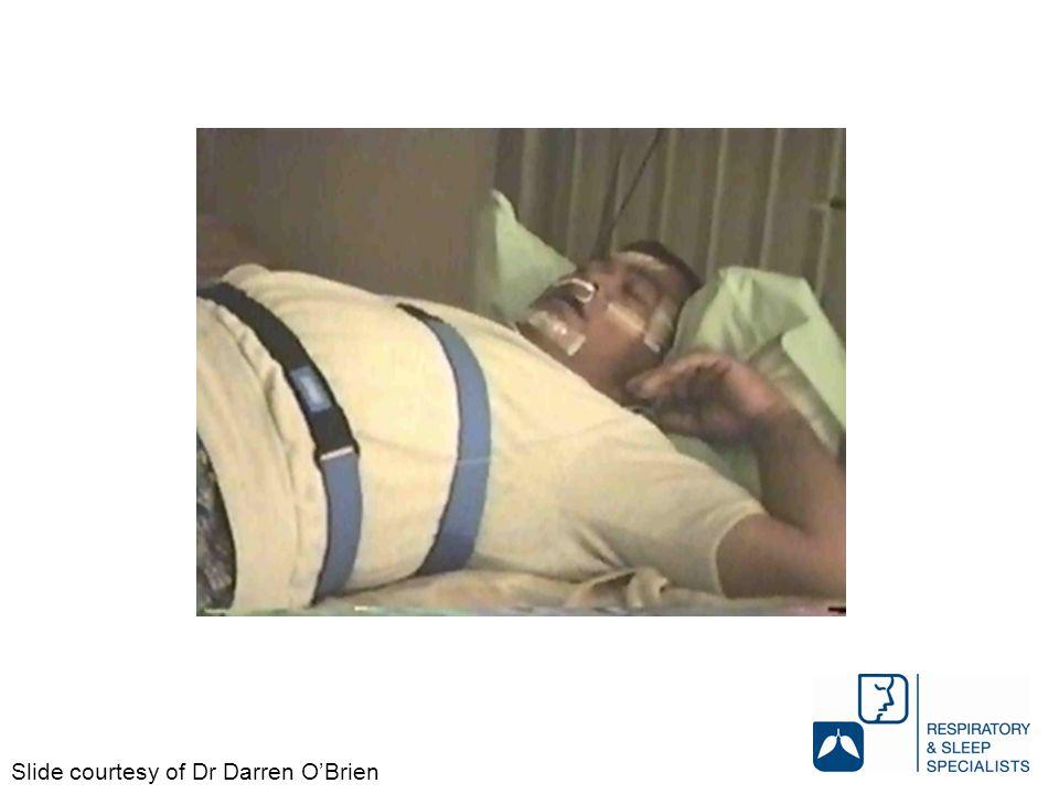 Slide courtesy of Dr Darren O'Brien