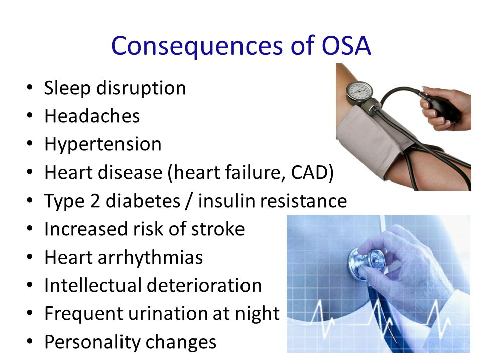 Consequences of OSA Sleep disruption Headaches Hypertension Heart disease (heart failure, CAD) Type 2 diabetes / insulin resistance Increased risk of