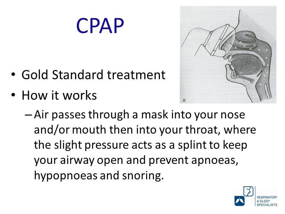 Gold Standard treatment How it works – Air passes through a mask into your nose and/or mouth then into your throat, where the slight pressure acts as