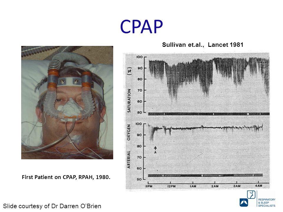 First Patient on CPAP, RPAH, 1980. Sullivan et.al., Lancet 1981 Slide courtesy of Dr Darren O'Brien