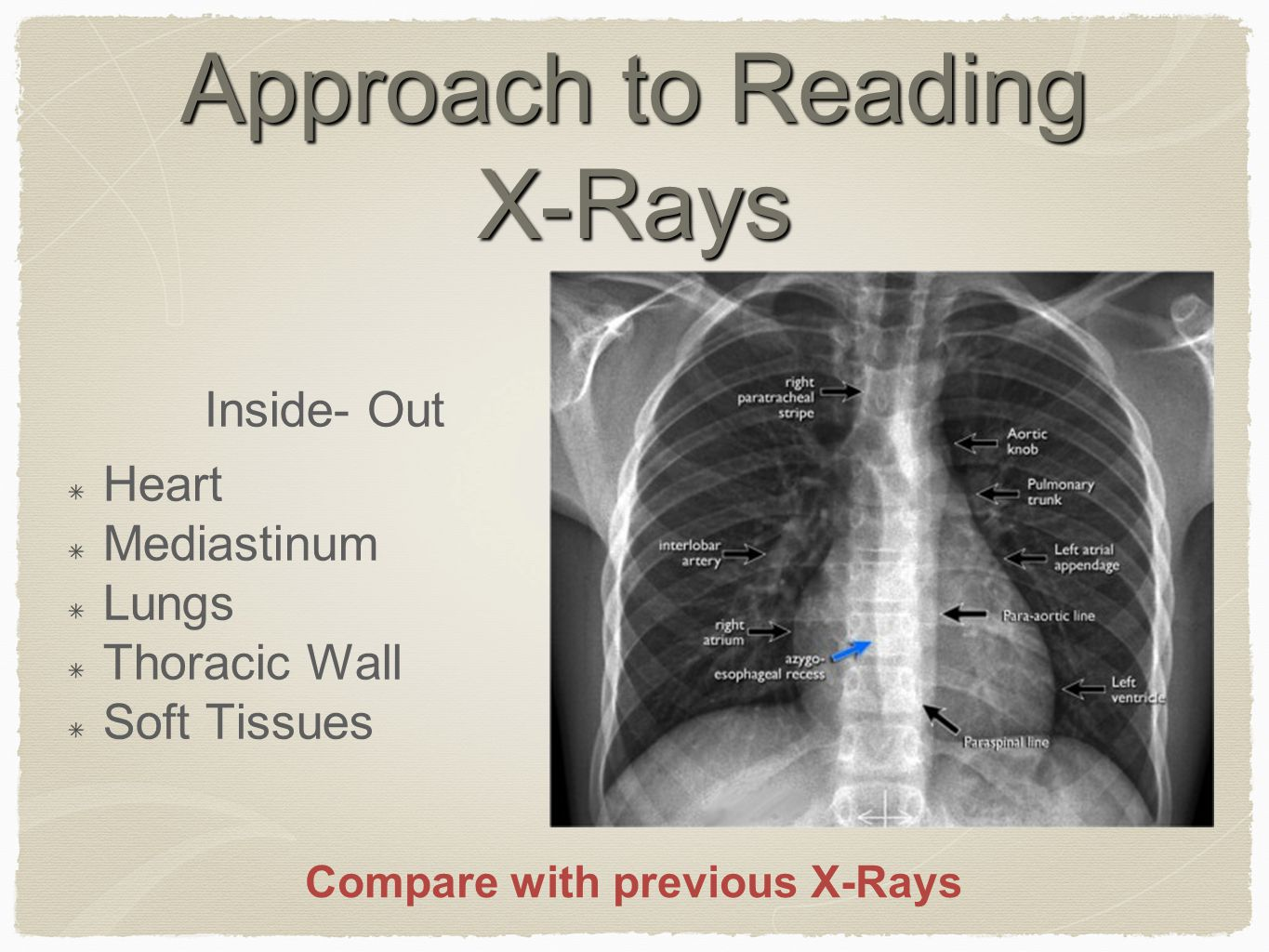 Approach to Reading X-Rays Inside- Out Heart Mediastinum Lungs Thoracic Wall Soft Tissues Compare with previous X-Rays