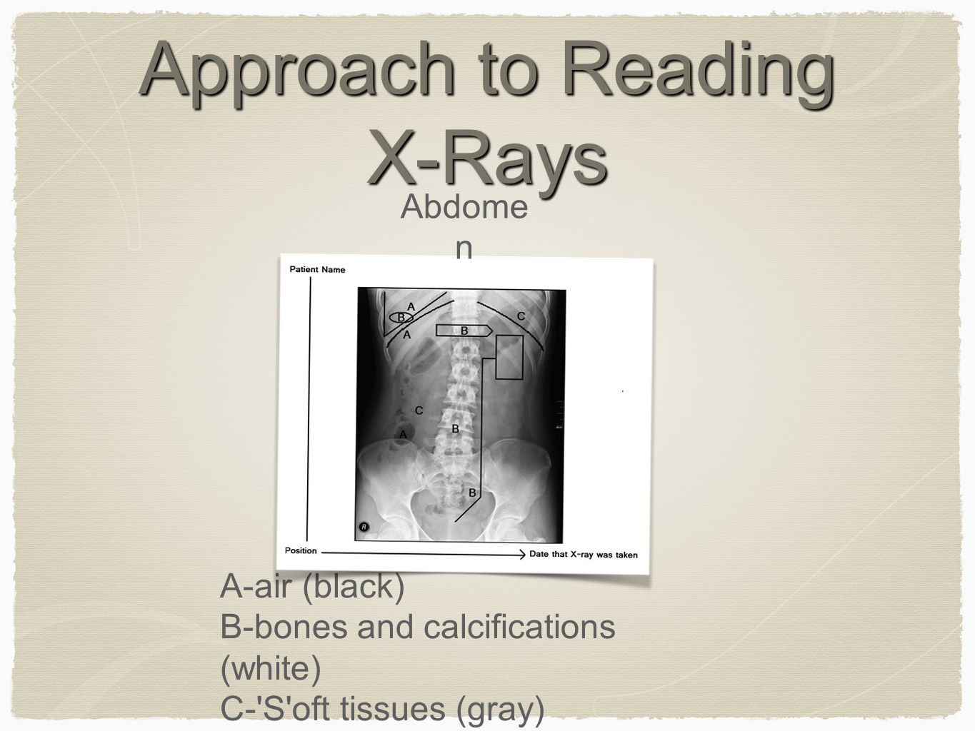 Approach to Reading X-Rays A-air (black) B-bones and calcifications (white) C- S oft tissues (gray) Abdome n