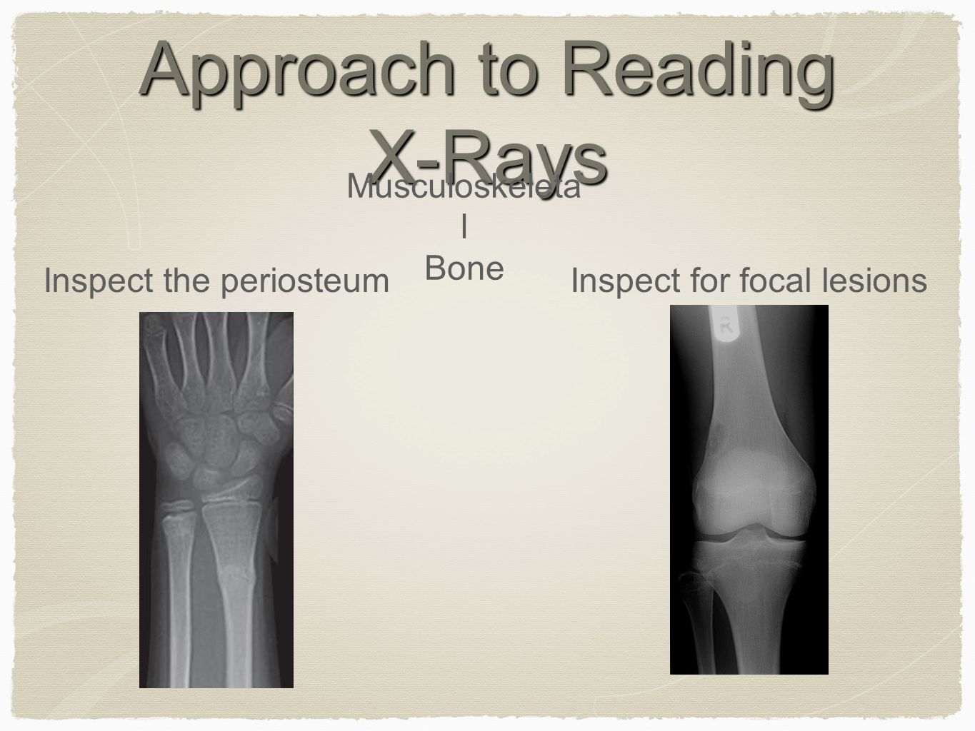 Approach to Reading X-Rays Musculoskeleta l Bone Inspect the periosteumInspect for focal lesions