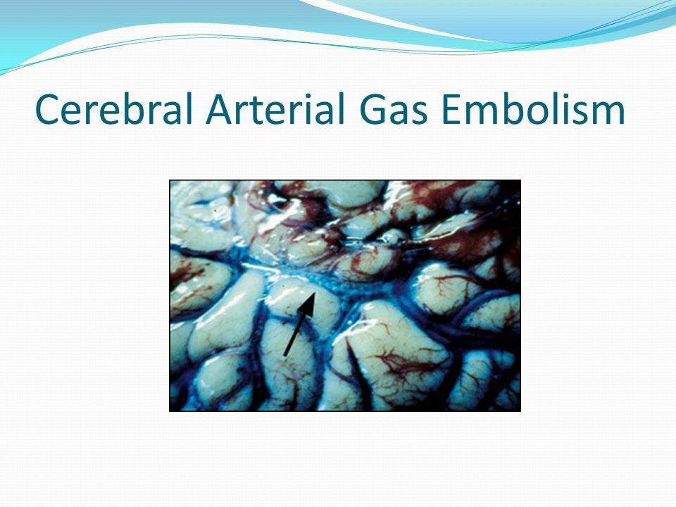 Cerebral Arterial Gas Embolism