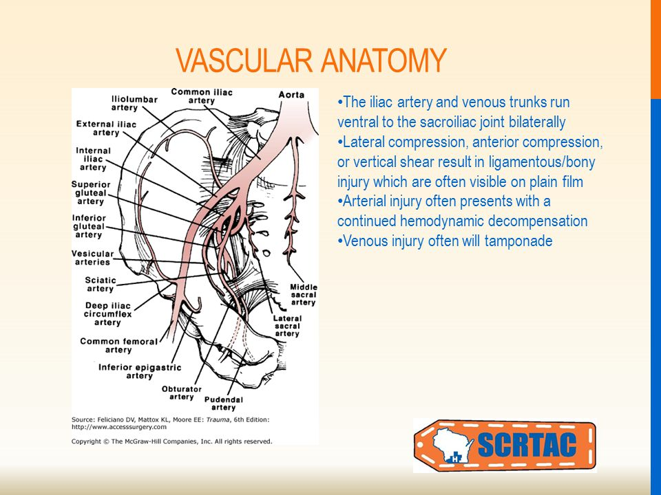 VASCULAR ANATOMY The iliac artery and venous trunks run ventral to the sacroiliac joint bilaterally Lateral compression, anterior compression, or vertical shear result in ligamentous/bony injury which are often visible on plain film Arterial injury often presents with a continued hemodynamic decompensation Venous injury often will tamponade