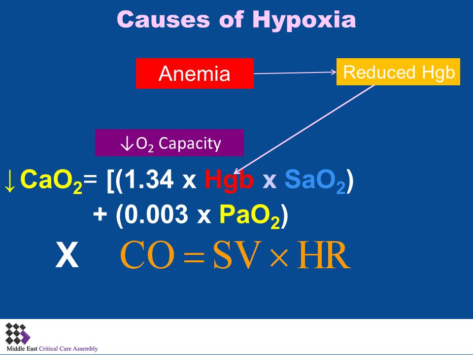 Causes of Hypoxia X CaO 2 = [(1.34 x Hgb x SaO 2 ) + (0.003 x PaO 2 ) Anemia Reduced Hgb ↓ ↓O 2 Capacity
