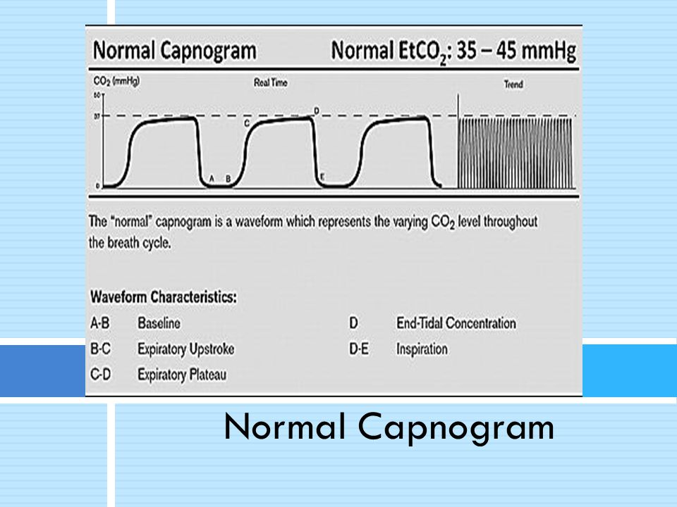 Normal Capnogram