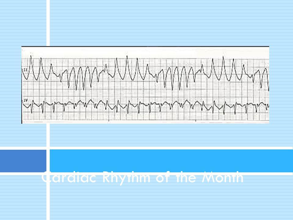Cardiac Rhythm of the Month