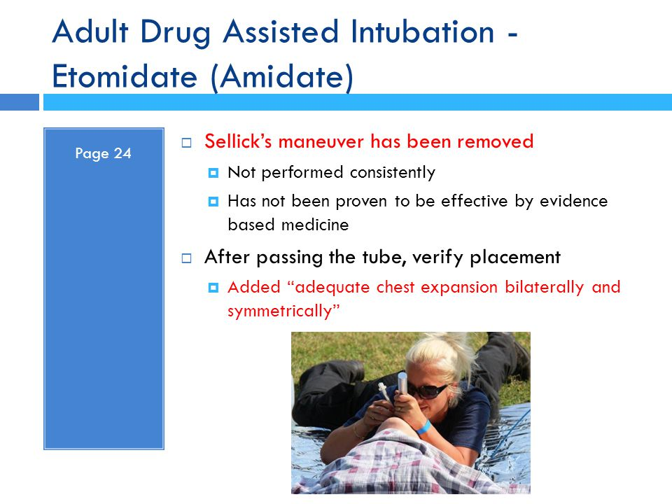 Adult Drug Assisted Intubation - Etomidate (Amidate) Page 24  Sellick's maneuver has been removed  Not performed consistently  Has not been proven