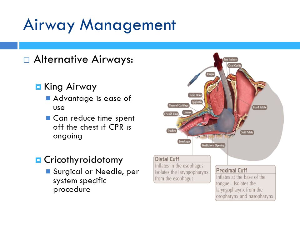 Airway Management  Alternative Airways:  King Airway Advantage is ease of use Can reduce time spent off the chest if CPR is ongoing  Cricothyroidot