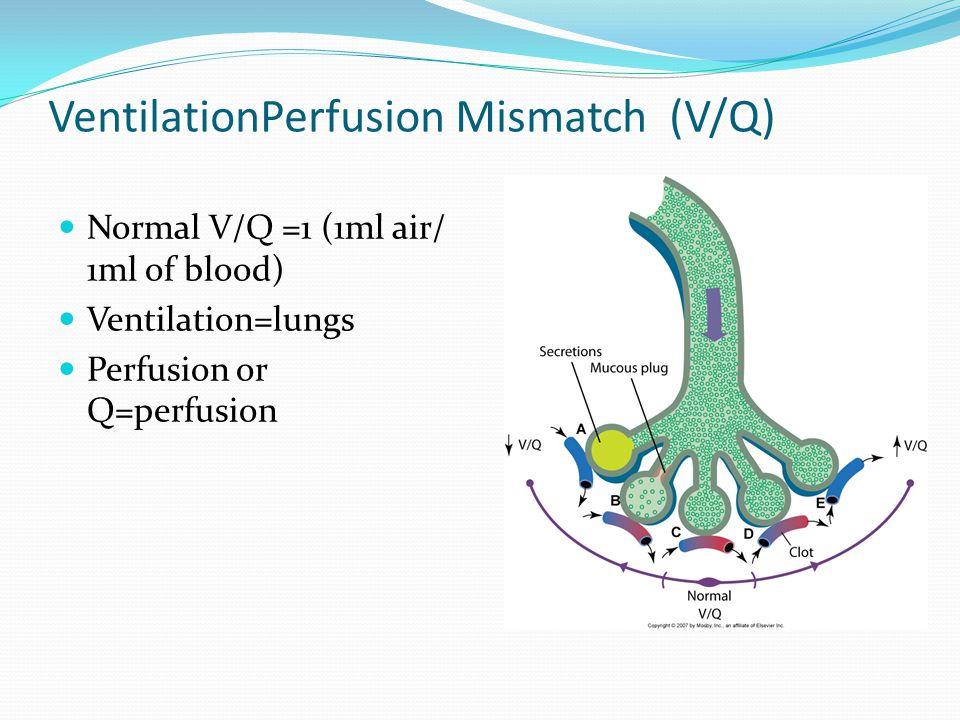 VentilationPerfusion Mismatch (V/Q) Normal V/Q =1 (1ml air/ 1ml of blood) Ventilation=lungs Perfusion or Q=perfusion